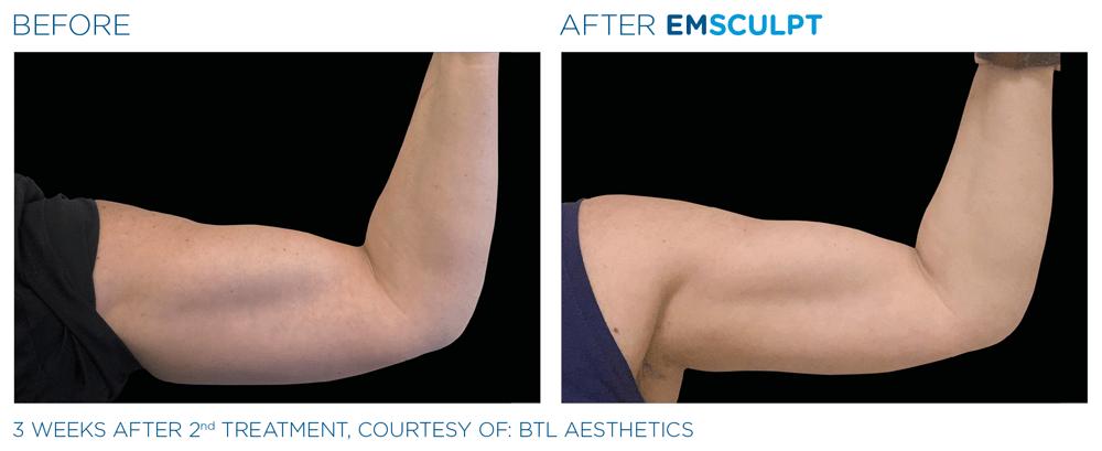 Emsculpt_PIC_Ba-card-female-arms-113_ENUS100